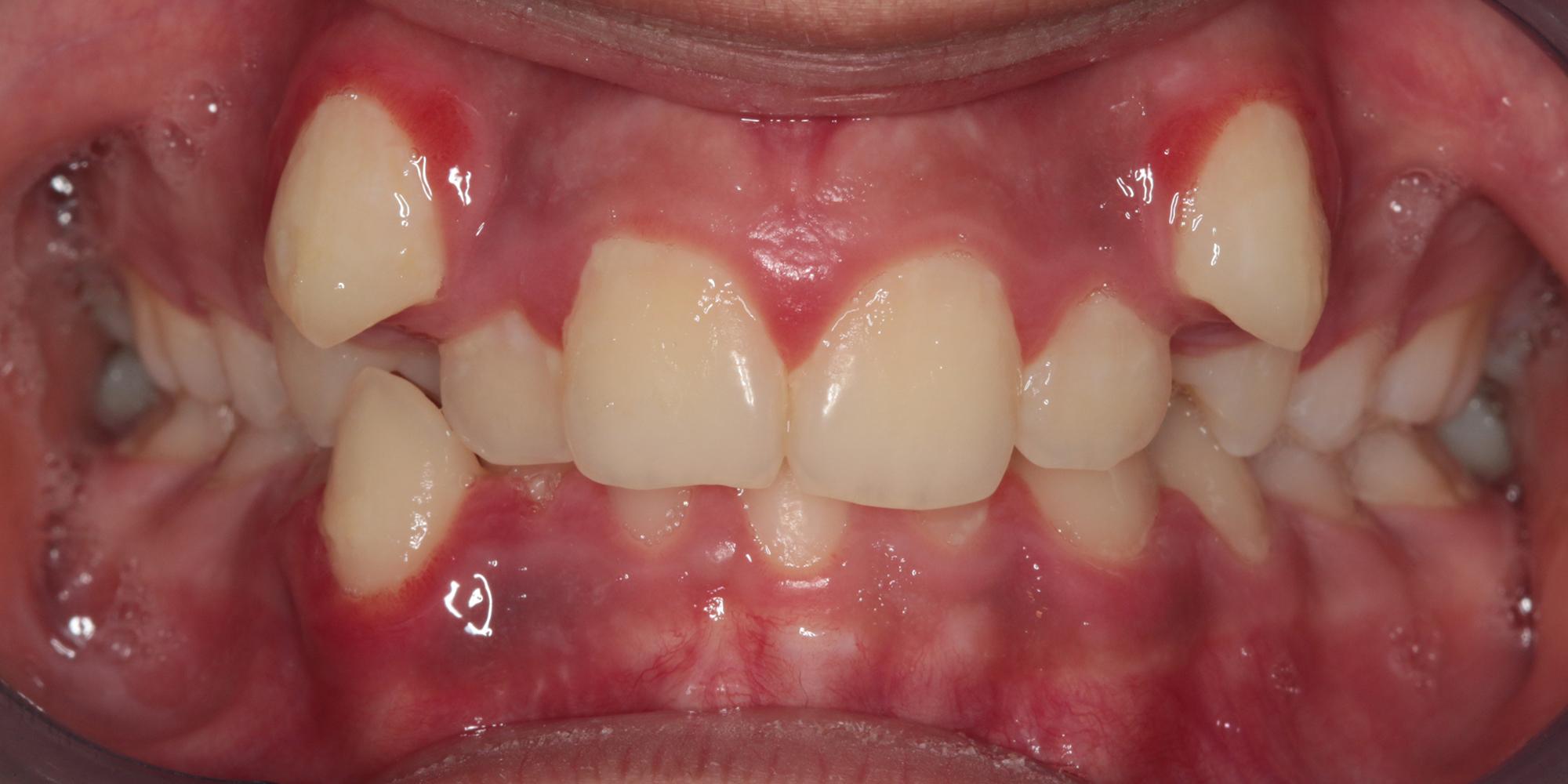 Ortodontik Tedavi Öncesi