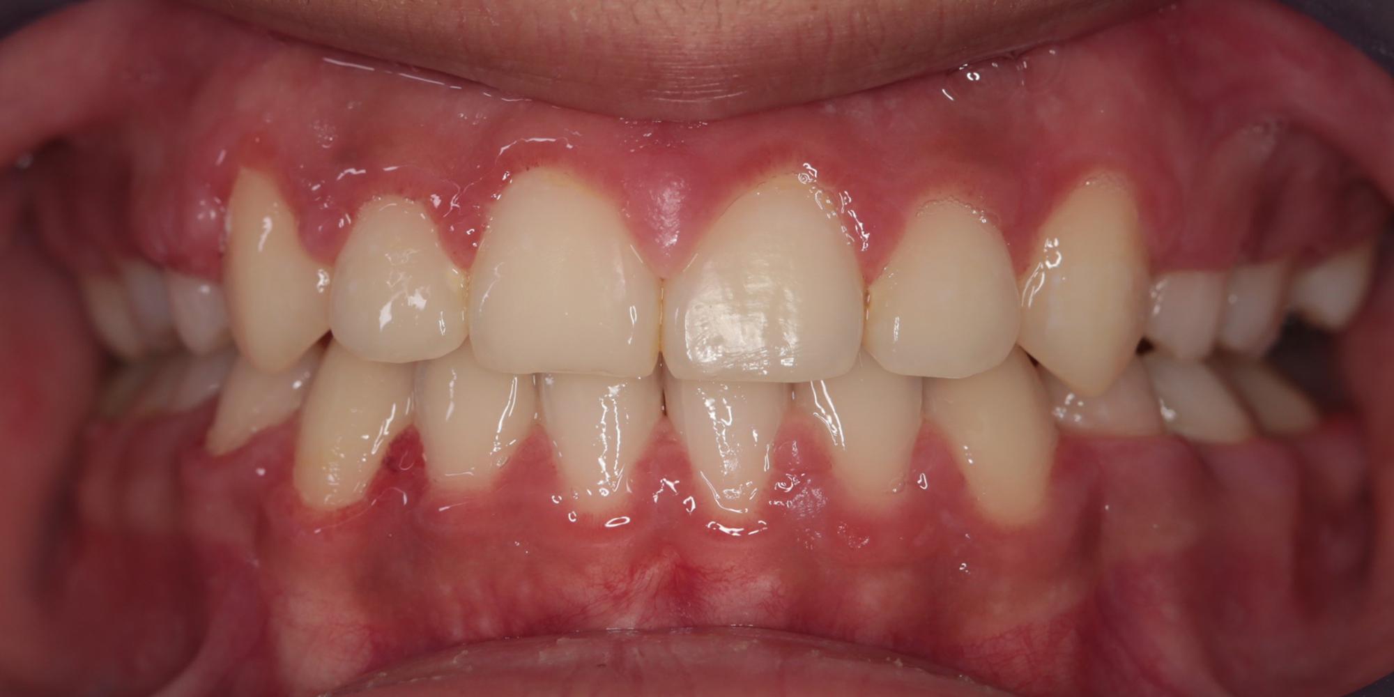 Ortodontik Tedavi Sonrası