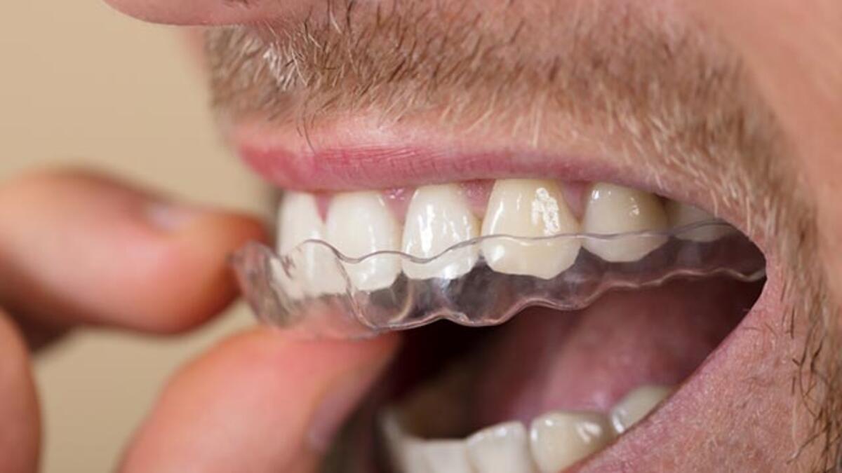 Uyku Apnesi Tedavisinde Ortodontik Çözüm